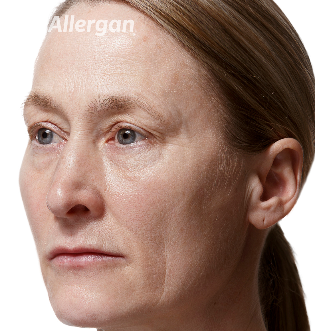 Juvederm | Caucasian female model 2 After angled