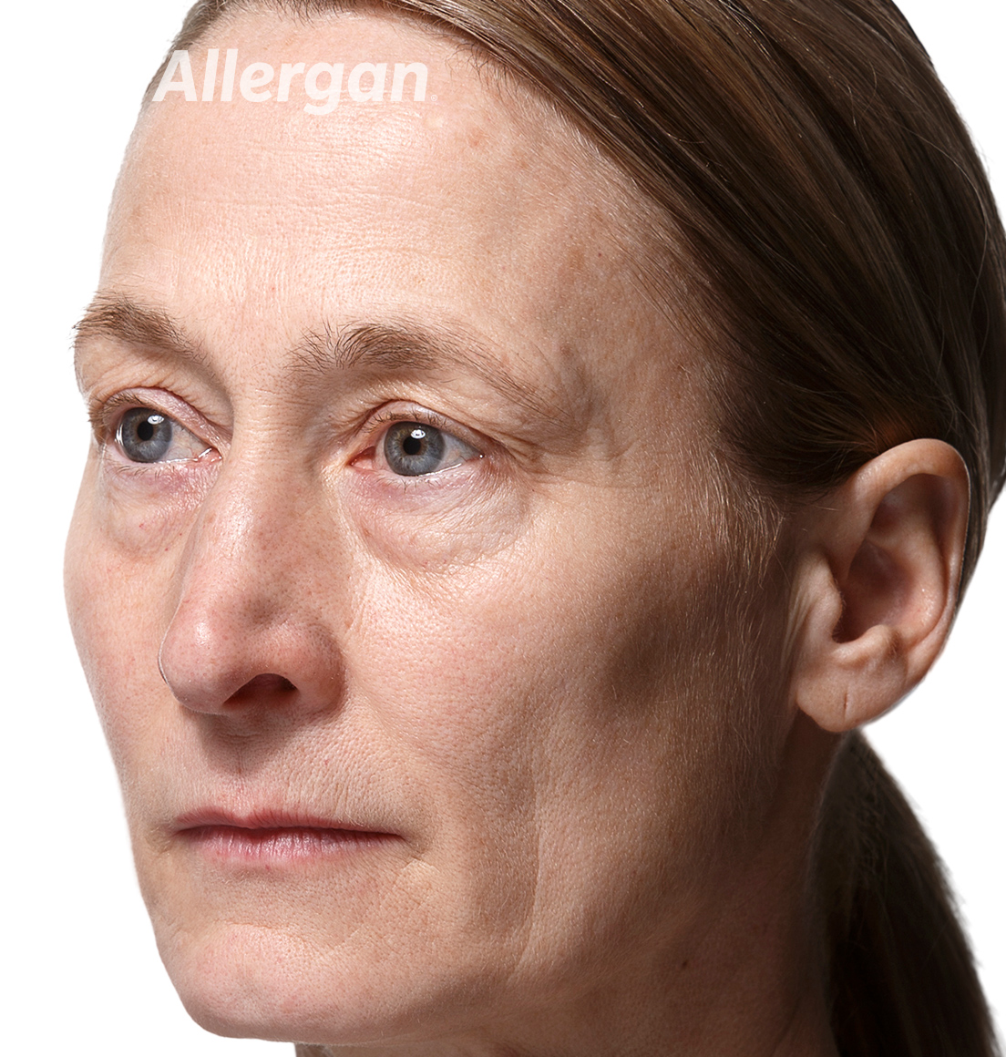 Juvederm | Caucasian female model 2 Before angled