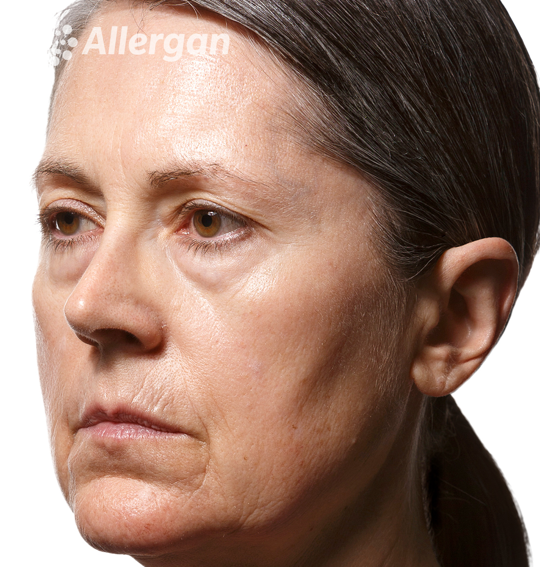 Juvederm | Caucasian female model 1 Before angled